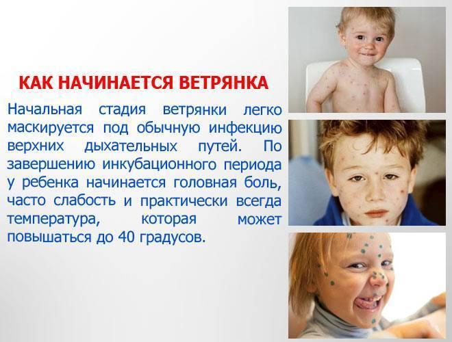Ветрянка у детей и взрослых: фото, симптомы, лечение