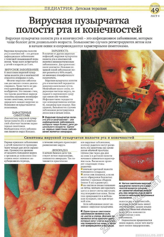 Энтеровирусный везикулярный стоматит — википедия