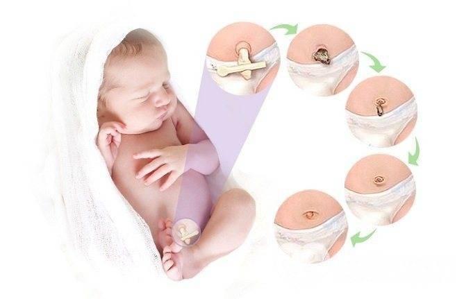 Загноился пупок у новорожденного: причины, что предпринять