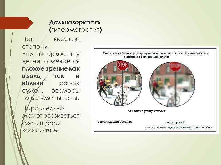 Гиперметропический астигматизм: симптомы, диагностика и лечение