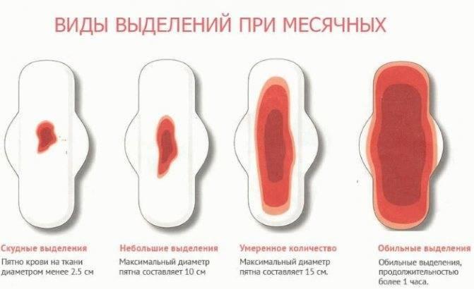 Что означают кровянистые выделения без боли между месячными