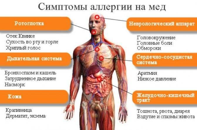 Почему возникает аллергия на шоколад? симптомы, фото проявлений и способы лечения