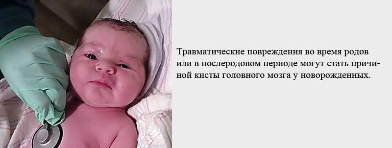 Псевдокиста в голове у новорожденного