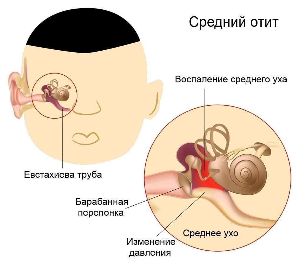 Отит у детей: симптомы и лечение. что делать, если у ребенка заболело ухо.