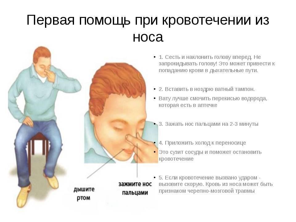 Кровотечение из носа у ребенка причины и лечение