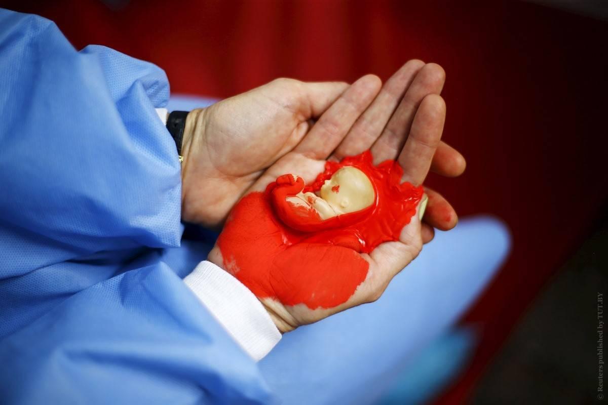 Выкидыш на ранних сроках беременности: симптомы, признаки, причины и лечение / mama66.ru