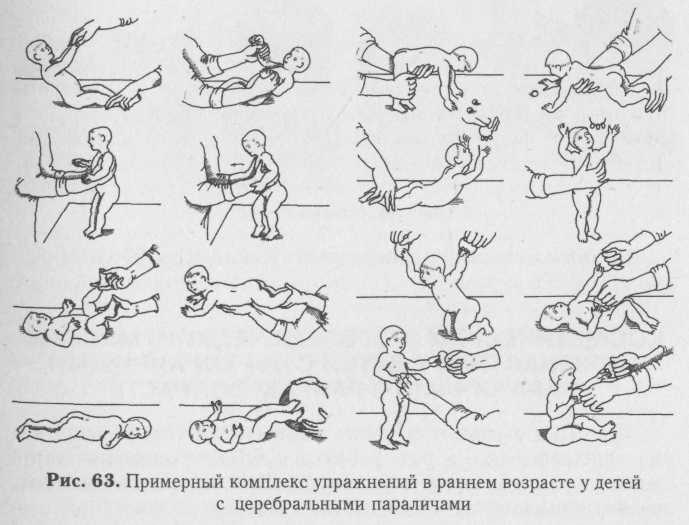 Все о мышечном гипотонусе у младенца: признаки гипотонии у грудничков, массаж