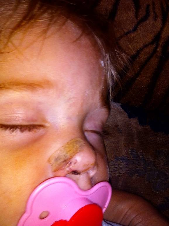 Как понять сломан ли нос у ребенка после падения