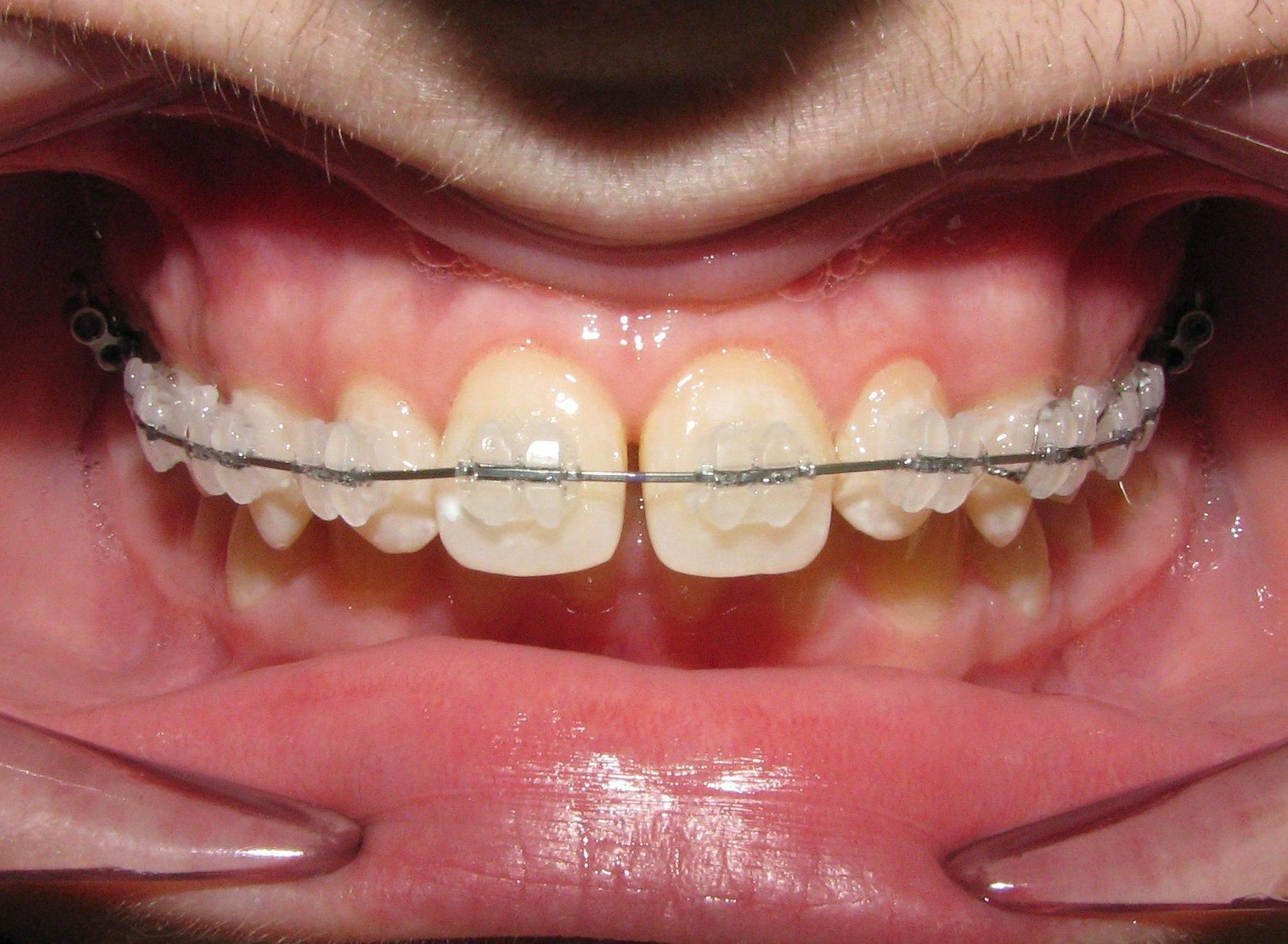 Как исправить прикус зубов у взрослого и ребенка с брекетами и без них