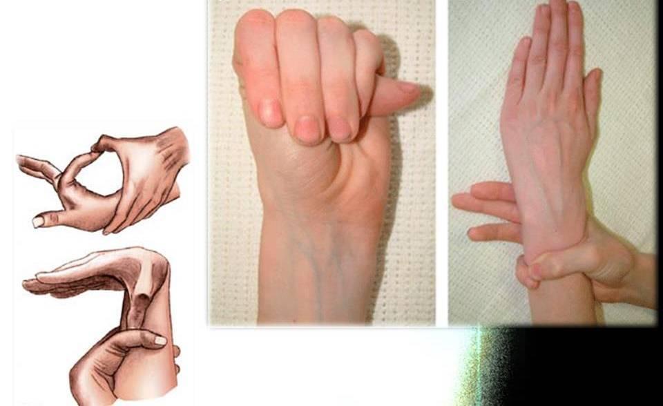 Что такое дисплазия соединительной ткани и как ее лечить?