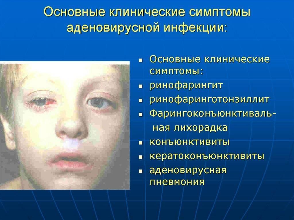 Аденовирусная инфекция у детей — симптомы, лечение и профилактика