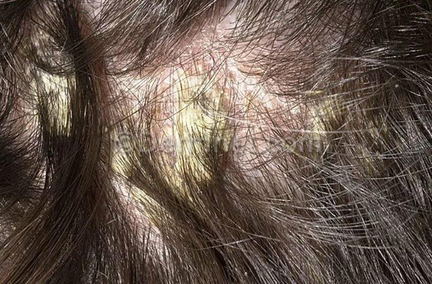 Причины и лечение себорейного дерматита волосистой части головы у детей