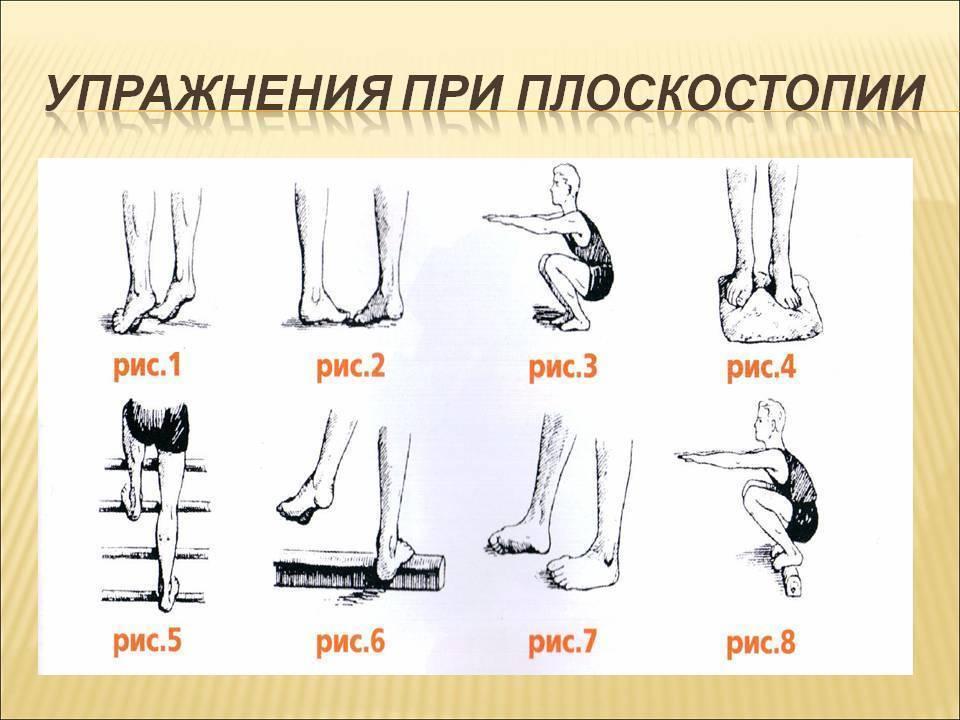 Упражнения при плоскостопии у детей: гимнастика и лфк, зарядка и комплекс упражнений