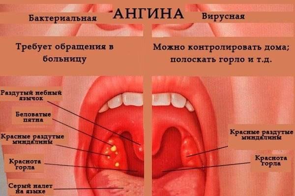 Ангина в горле у ребенка (30 фото): как выглядит фолликулярная, лакунарная, вирусная и катаральная и грибковая, бактериальная и стрептококковая формы, налет на миндалинах в начальной стадии