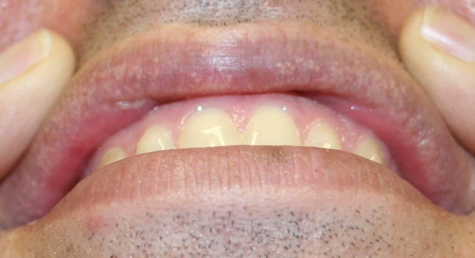 Герпес на языке — симптомы и лечение