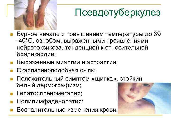 Псевдотуберкулез у детей: 6 предрасполагающих факторов, 5 групп симптомов, методы лечения
