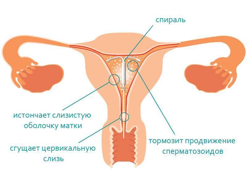 Удаление внутриматочной спирали | «московский доктор»
