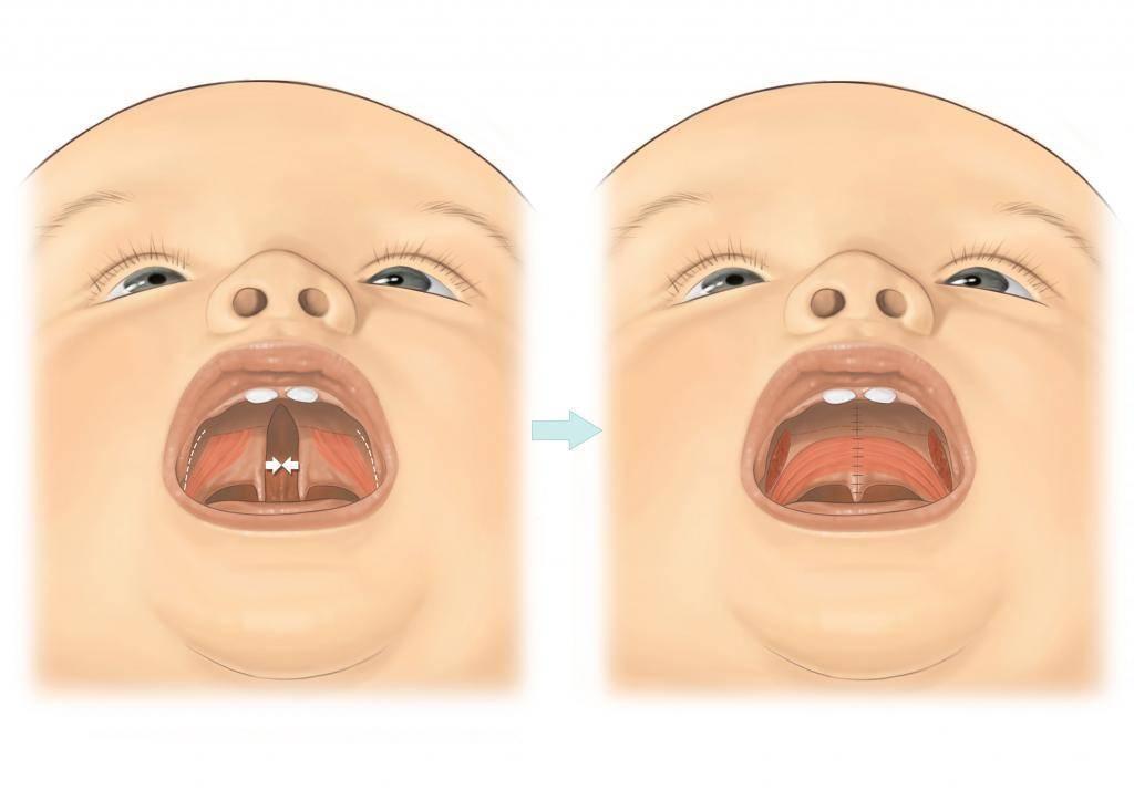 Порок заячья губа. почему рождаются дети с заячьей губой. двусторонняя заячья губа