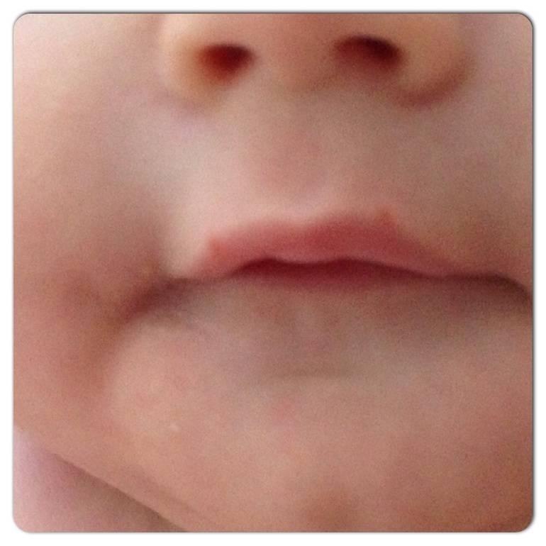 Герпес: лечение простуды на губах у ребенка. герпес генитальный и на губах