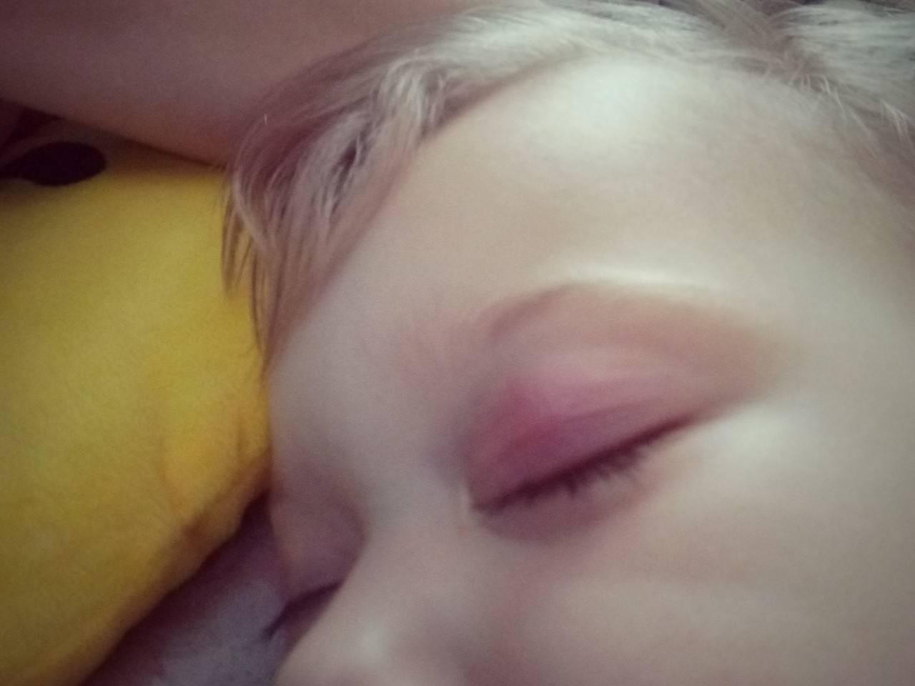 Как лечить воспаление верхнего века глаза? признаки у ребенка и фото