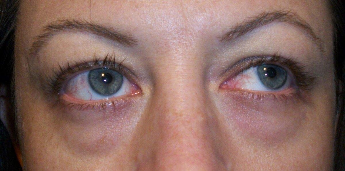Мешки под глазами у ребенка: причины и лечение