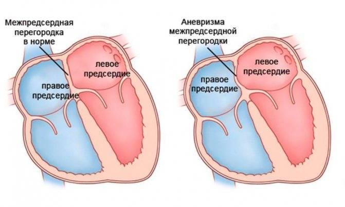 Насколько опасен дефект межжелудочковой перегородки у новорожденного?