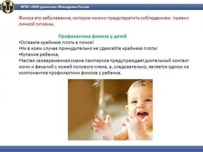 Фимоз у мальчиков: лечение в домашних условиях и профилактика