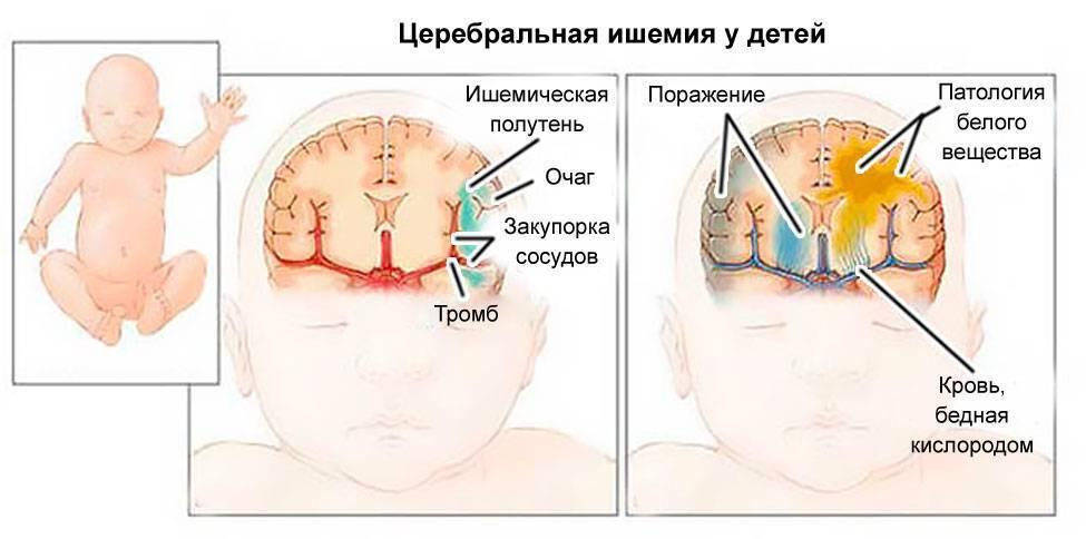 Какие последствия могут быть у ребенка при хронической внутриутробной гипоксии | малыш здоров!