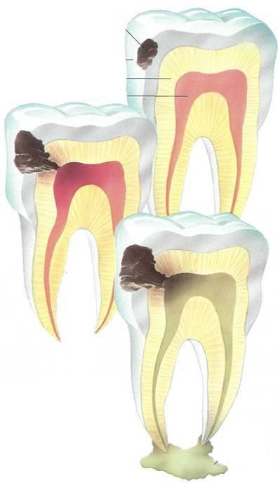 Лечение пульпита у детей: этапы, симптомы и причины возникновения пульпита молочных зубов
