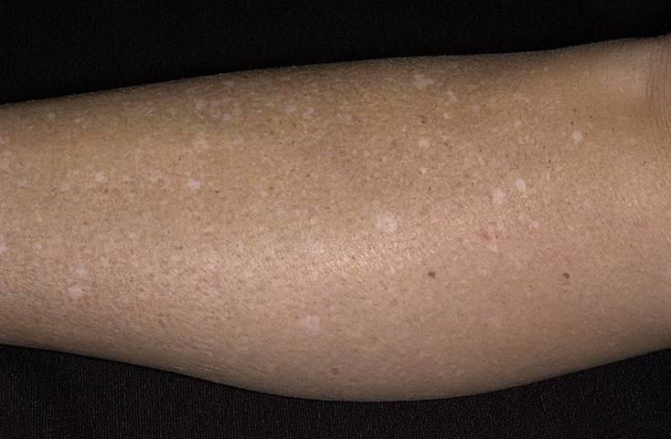 Причины появления у грудничков на коже шершавых, сухих пятен разного цвета
