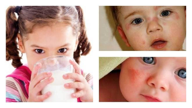 Что делать при аллергии на молоко у ребенка