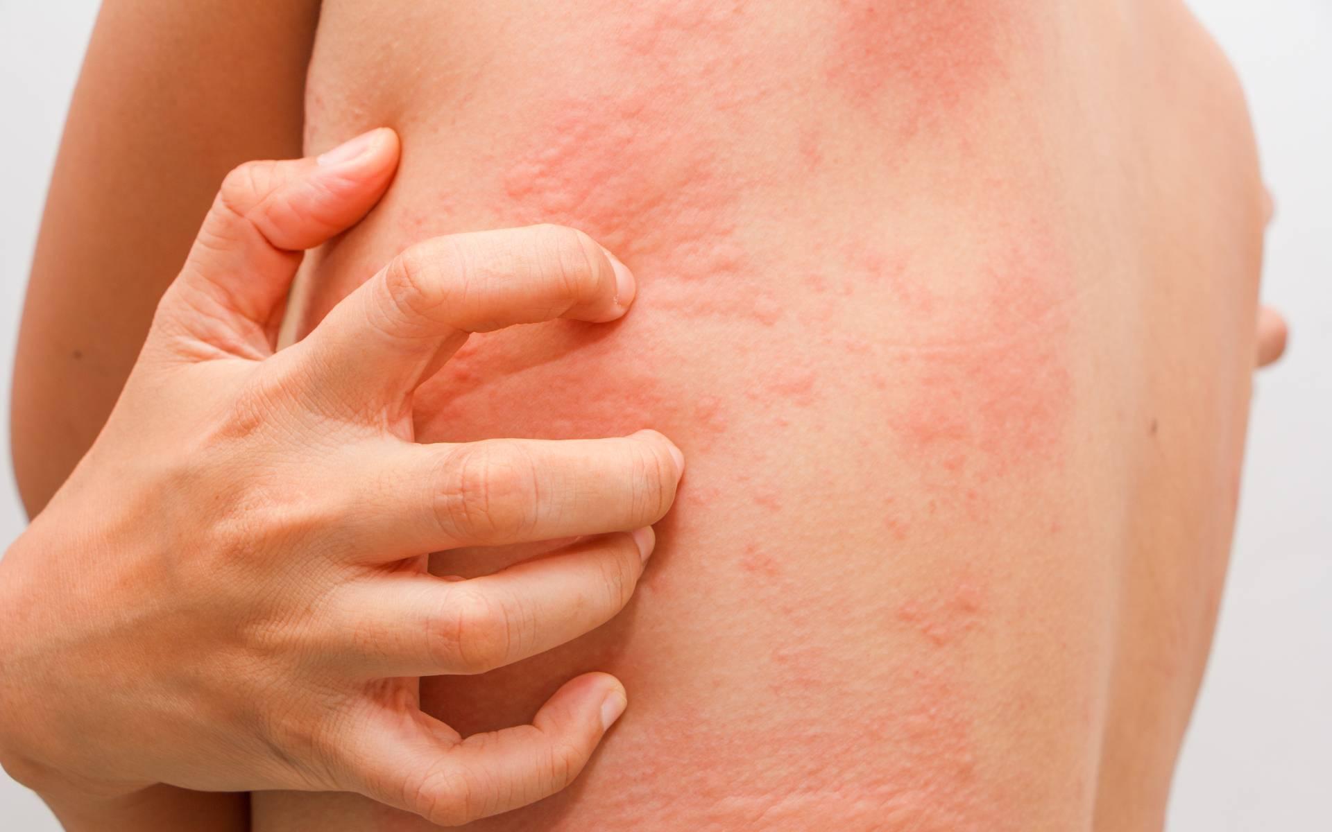 Инфекционная эритема у детей: фото, симптомы и лечение. инфекционная эритема у детей и взрослых - симптомы и лечение - медицина для тебя