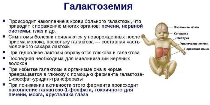 Галактоземия: симптомы, принципы лечения (диета). симптомы галактоземии у новорожденных и норма фермента в крови у детей повышенный уровень галактозы в крови новорожденного