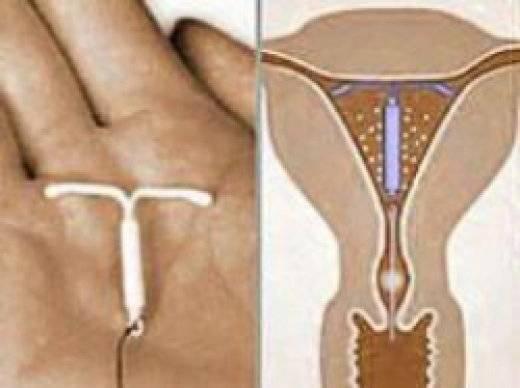 Внутриматочная спираль вросла симптомы. показания к удалению внутриматочной спирали