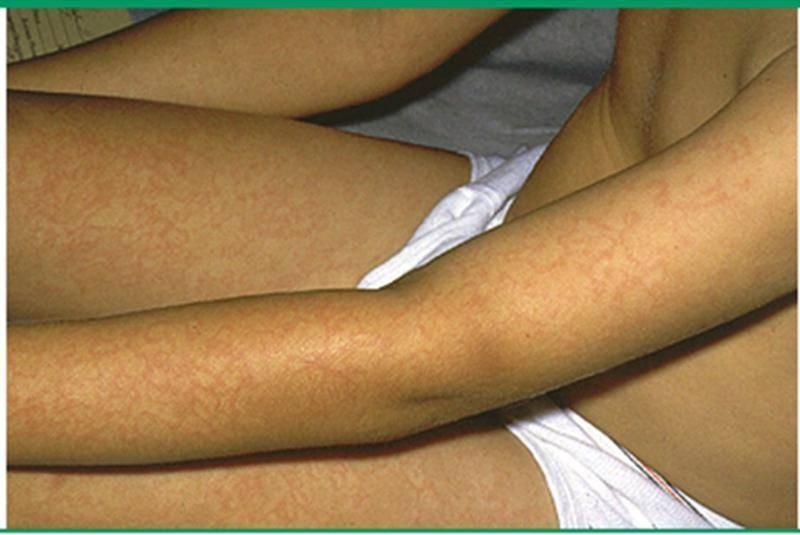 Инфекционная эритема у детей - фото, симптомы вирусной болезни, лечение