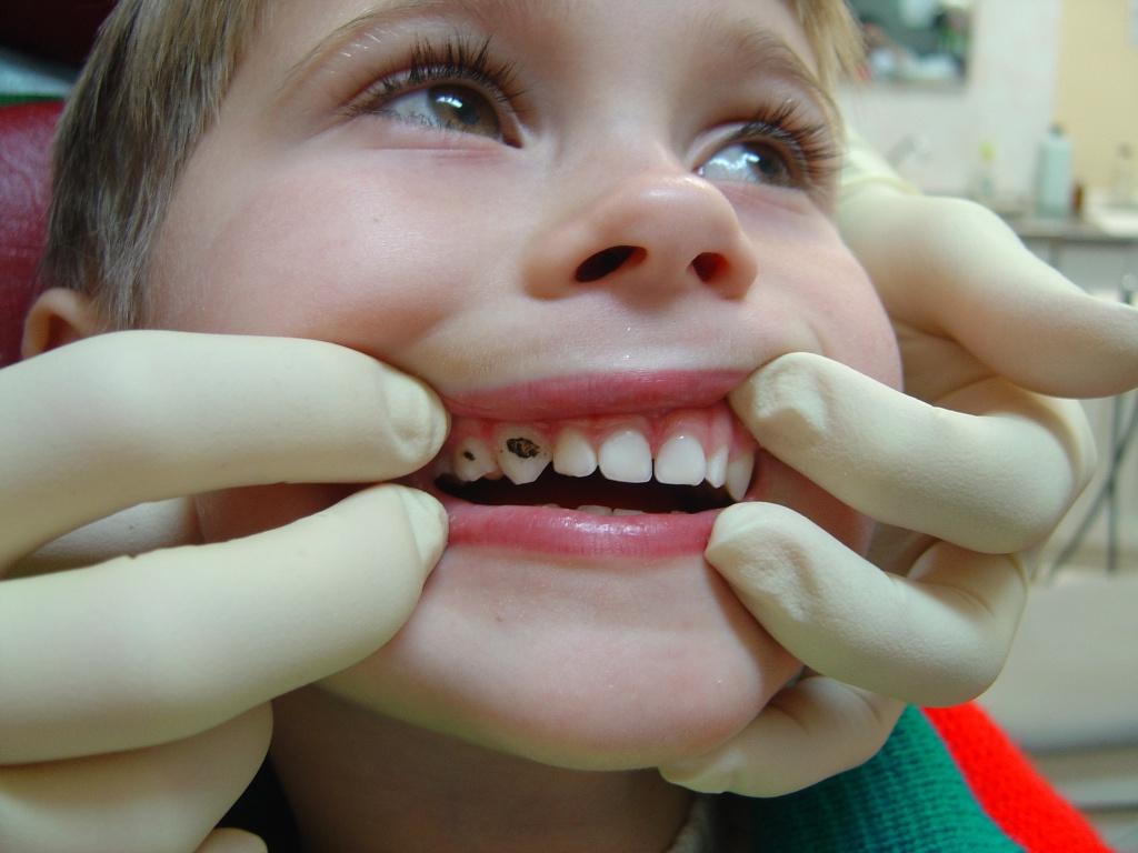 Все о процедуре посеребрения молочных зубов у детей