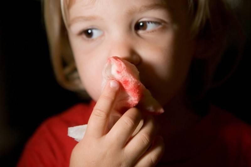 У ребенка сопли с кровью: как быть?