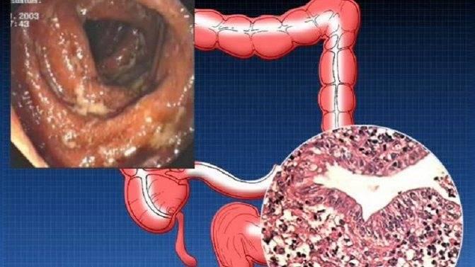 Болезнь крона у детей: симптомы и лечение воспаления жкт, причины патологии