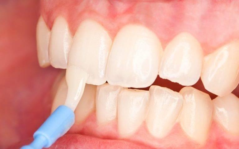 6 предостережений для тех, кто хочет провести фторирование зубов дома