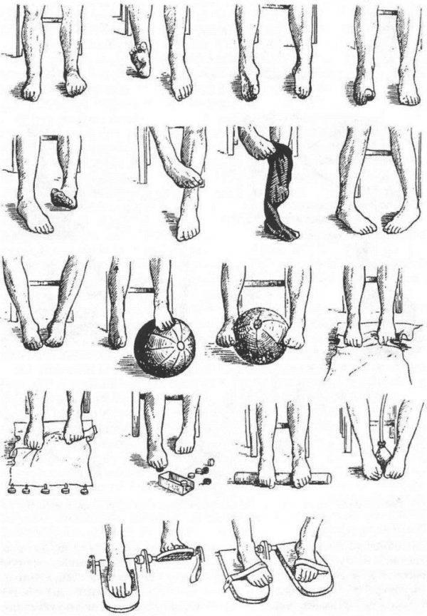 Варусная деформация стопы и ног у детей: причины, профилактика, лечение