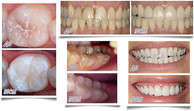 Фторирование молочных зубов у детей: отзывы, цена глубокого и классического покрытия