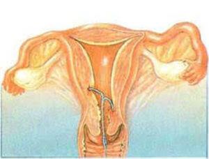 Спираль вросла в матку последствия. показания к удалению внутриматочной спирали | здоровье человека