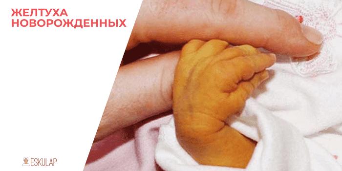 Симптомы и последствия ядерной желтухи новорожденных
