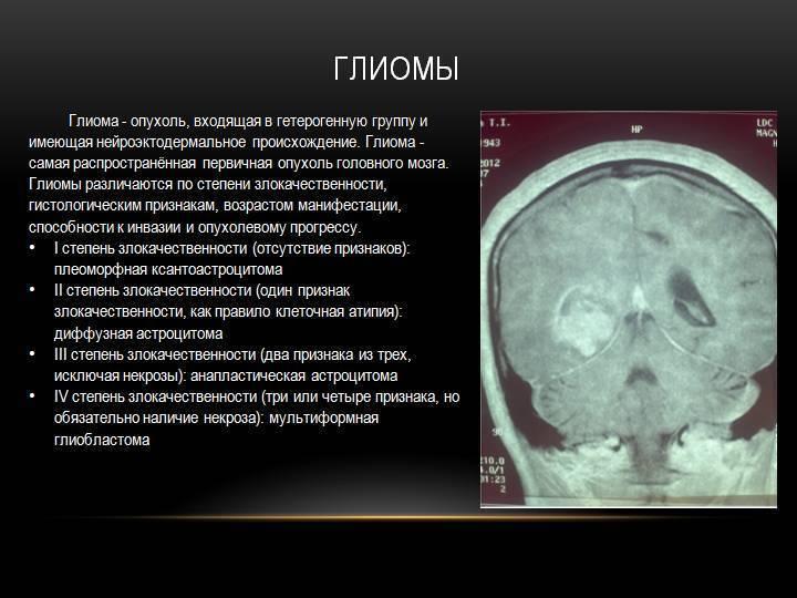 Опухоль головного мозга: сколько с ней живут, прогноз