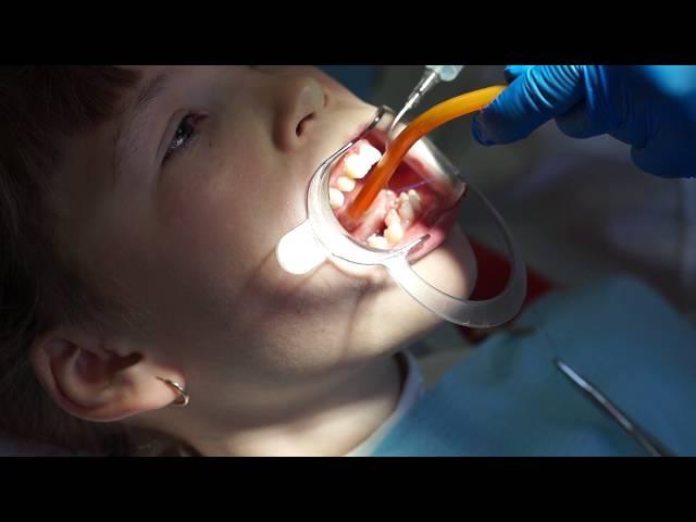 Подрезание уздечки под языком у детей ?: как и в каком возрасте делают пластику и зачем это нужно?
