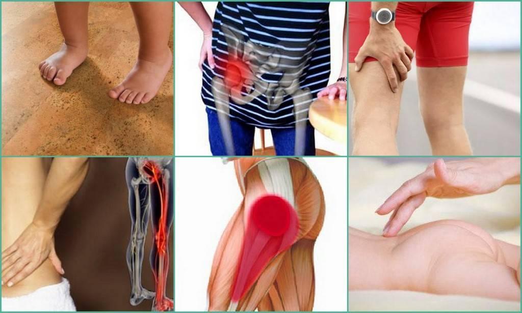 Лечение воспаления тазобедренного сустава у ребенка, симптомы и причины детского артрита - все о суставах