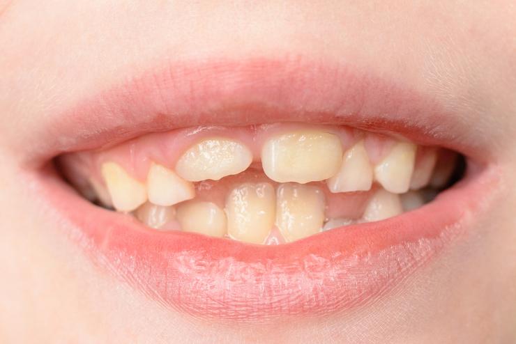 Кривые зубы у детей: фото, способы исправить искривление быстро и просто