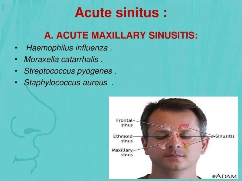 Инфекции, вызываемые moraxella catarrhalis (моракселла катаралис): схема лечения