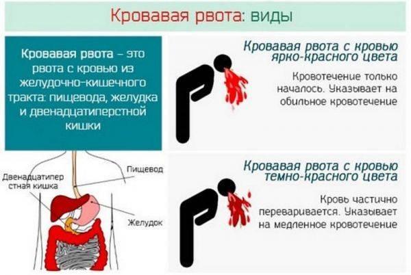 Как остановить рвоту у ребенка в домашних условиях, что делать, если рвота не прекращается / mama66.ru
