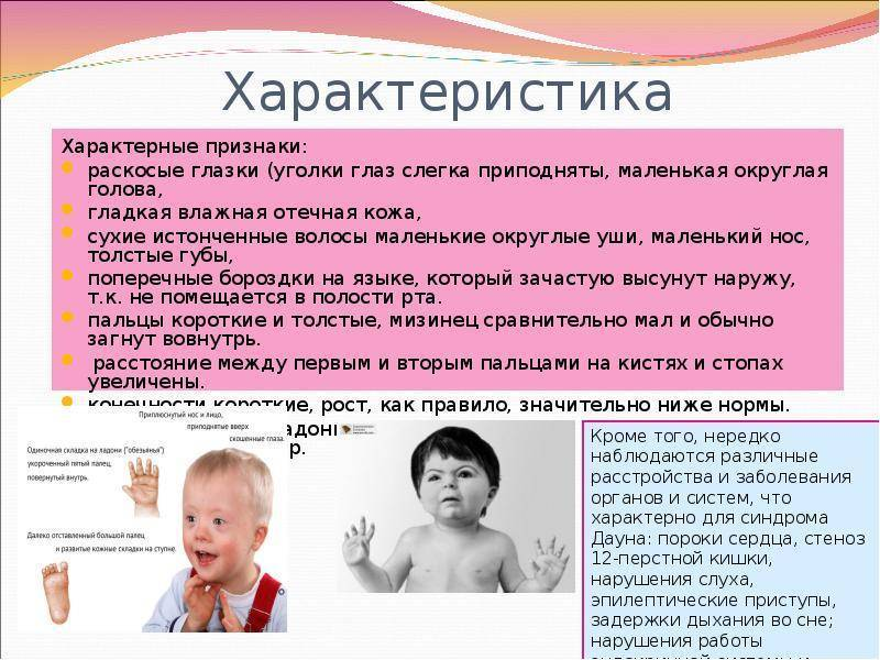 Дети с синдромом дауна :симптомы,причины,лечение